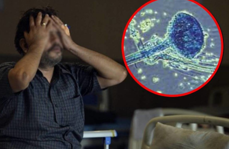 Detectan en México, primer probable caso de hongo negro en paciente de Covid-19